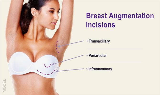 Breast Augmentation Incision locations and types