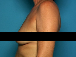 example-side-breast-view